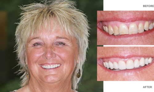 CARYN   Full mouth reconstruction - Anti aging