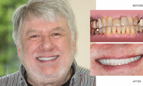 Richard   Full mouth reconstruction - Anti aging