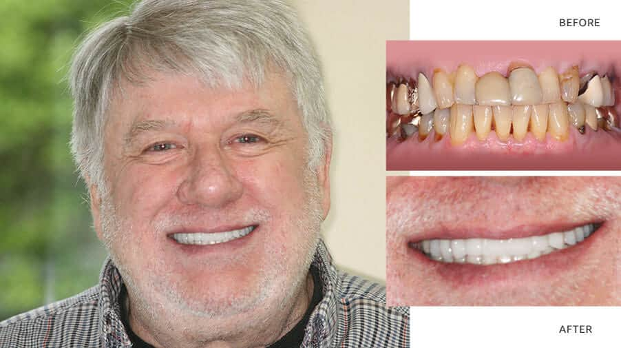Richard | Full mouth reconstruction - Anti aging