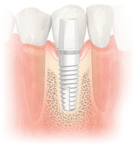 Metal-Free Dental Implants